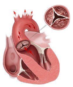 Closed Heart Valve